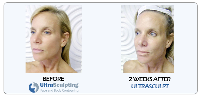 orlando body contouring and face lift with ultrasculpting